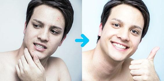 acne-oily skin