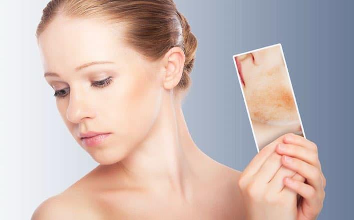rosacea-sensitive-skin
